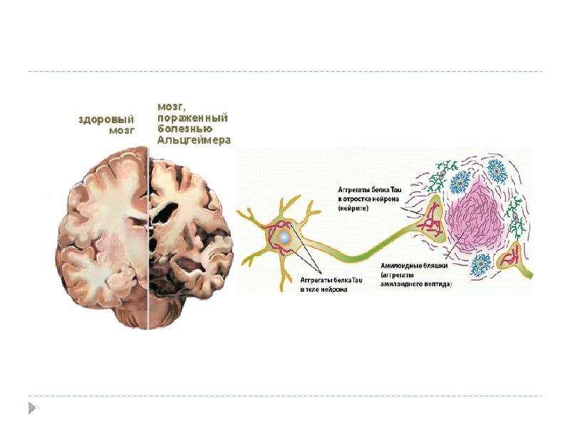 Нейродегенеративные заболевания, слайд 12