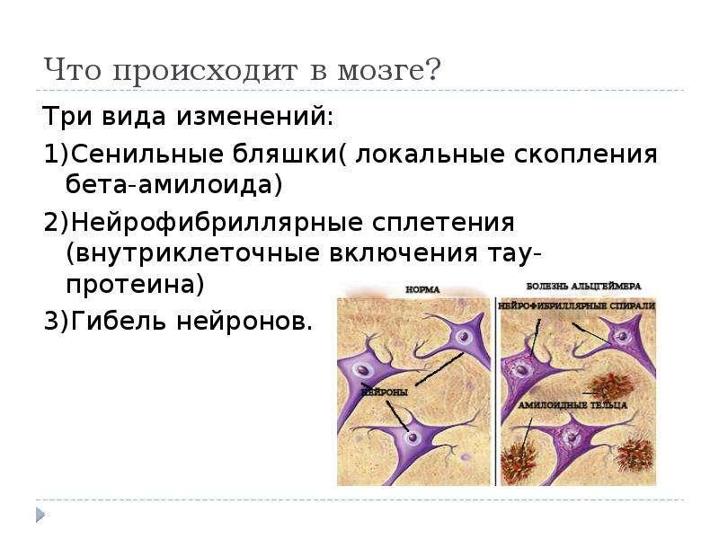 Что происходит в мозге? Три вида изменений: 1)Сенильные бляшки( локальные скопления бета-амилоида) 2