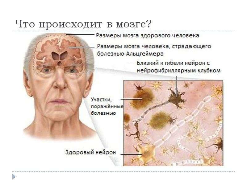 Что происходит в мозге?