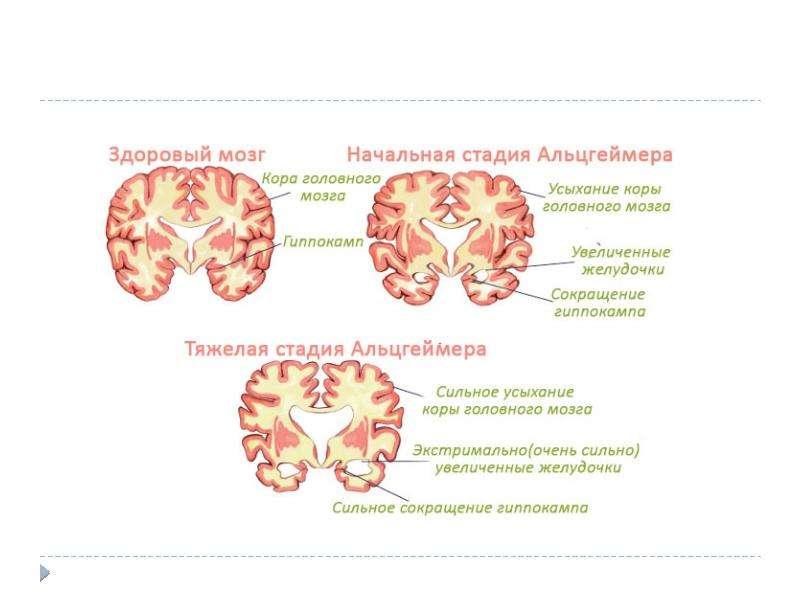 Нейродегенеративные заболевания, слайд 20