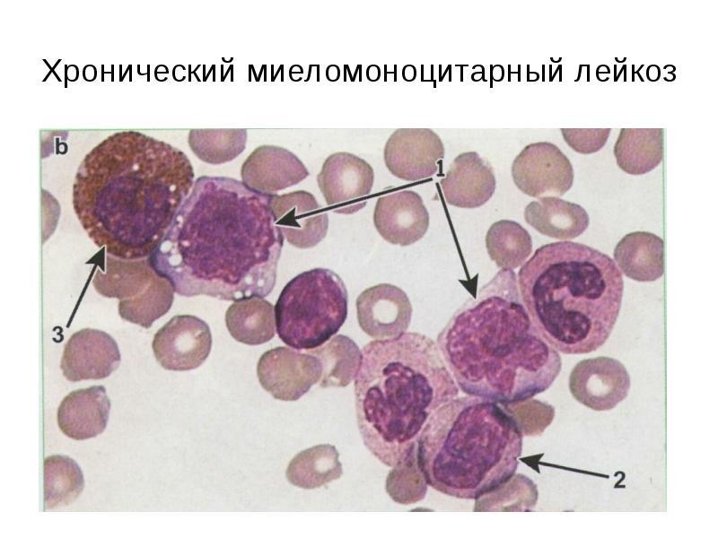 Хронический миеломоноцитарный лейкоз