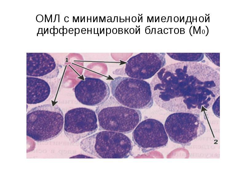 ОМЛ с минимальной миелоидной дифференцировкой бластов (М0)