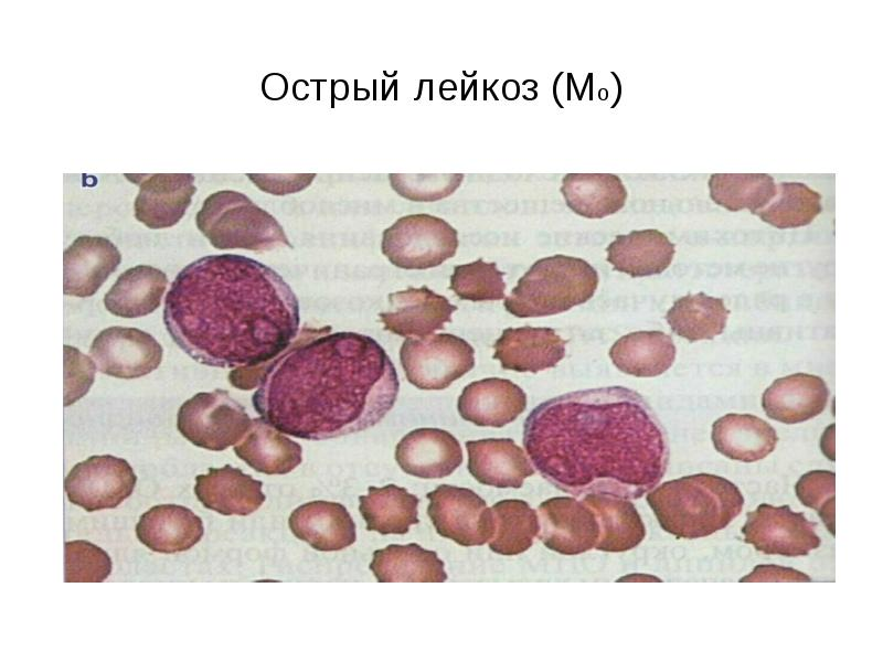 Острый лейкоз (Мо)