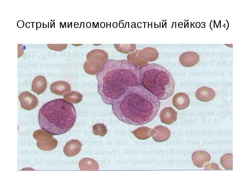 Острый миеломонобластный лейкоз (М4)