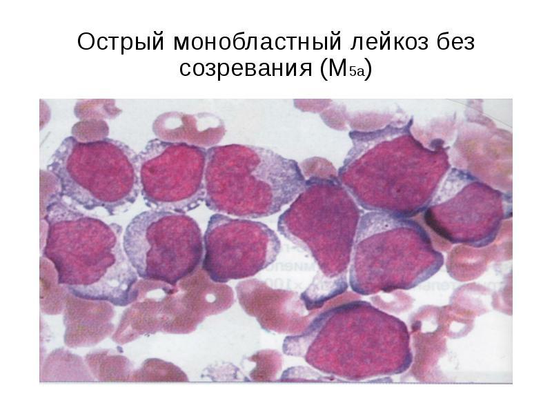 Острый монобластный лейкоз без созревания (М5а)