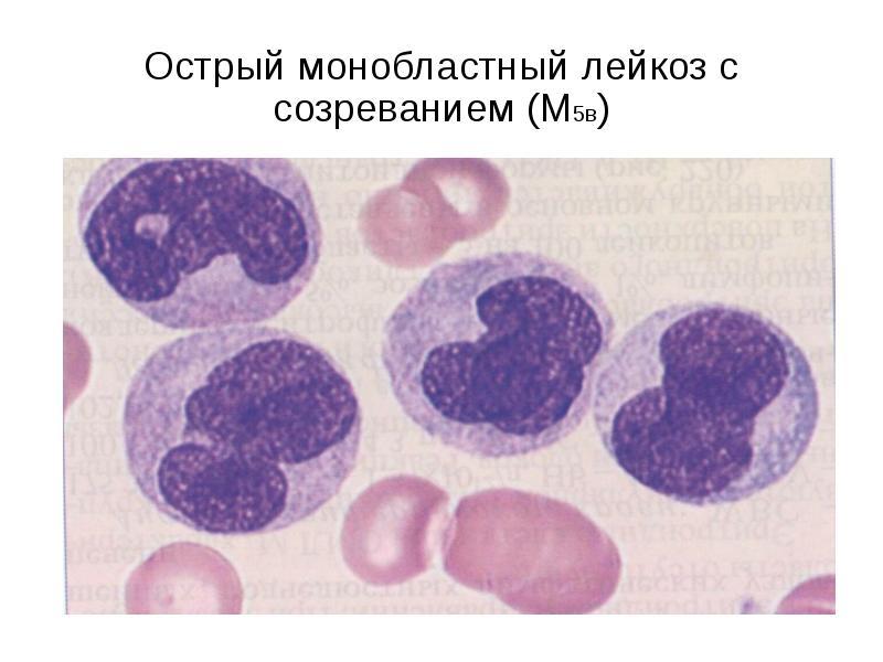 Острый монобластный лейкоз с созреванием (М5в)
