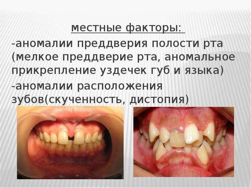 местные факторы: -аномалии преддверия полости рта (мелкое преддверие рта, аномальное прикрепление у