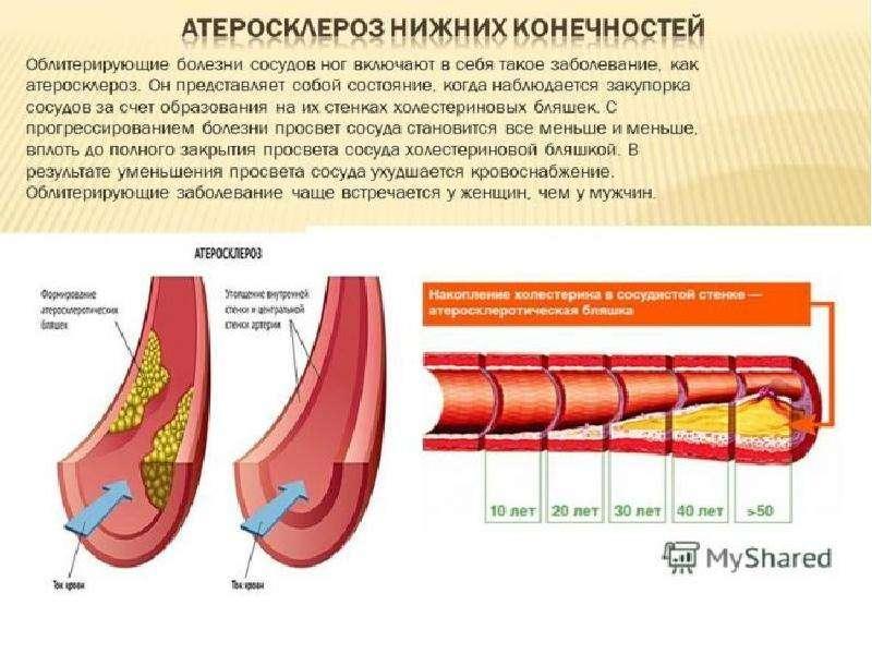 Облитерирующий атеросклероз брюшной аорты и артерий нижних конечностей, слайд 18