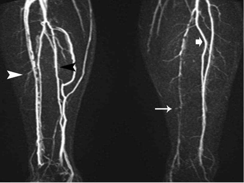 Облитерирующий атеросклероз брюшной аорты и артерий нижних конечностей, слайд 25