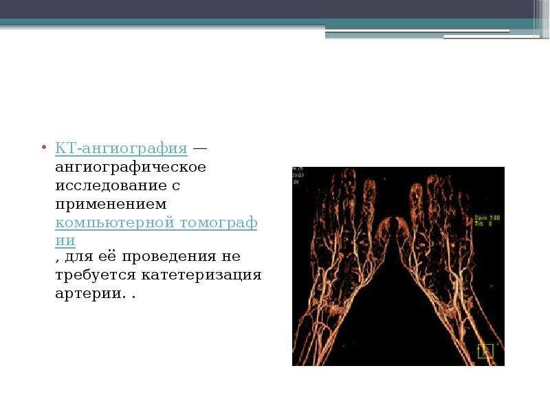 КТ-ангиография — ангиографическое исследование с применением компьютерной томографии, для её проведе