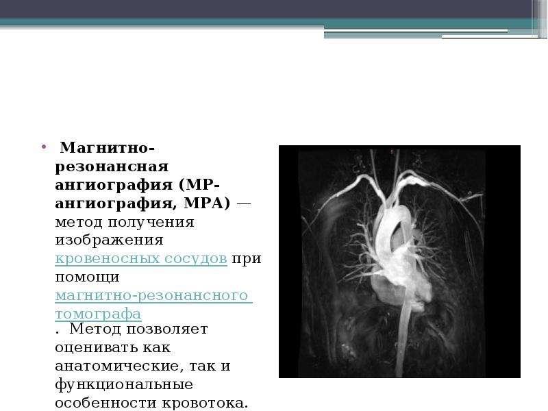 Магнитно-резонансная ангиография (МР-ангиография, МРА) — метод получения изображения кровеносных сос