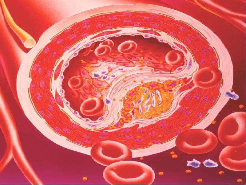 Облитерирующий атеросклероз брюшной аорты и артерий нижних конечностей, слайд 4