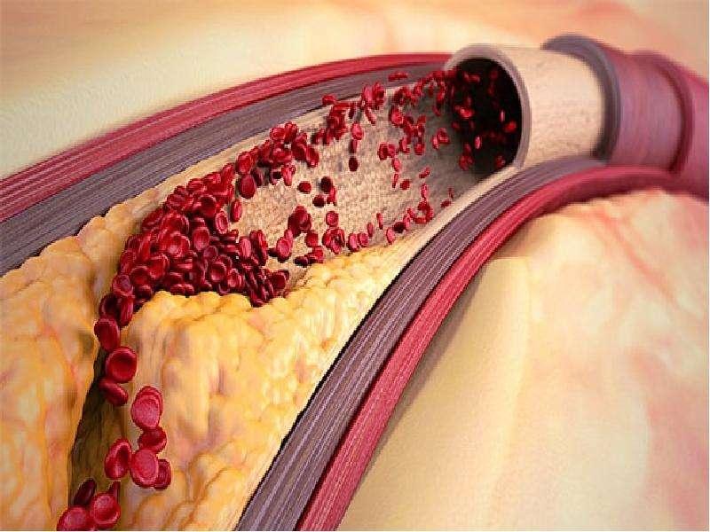 Облитерирующий атеросклероз брюшной аорты и артерий нижних конечностей, слайд 6