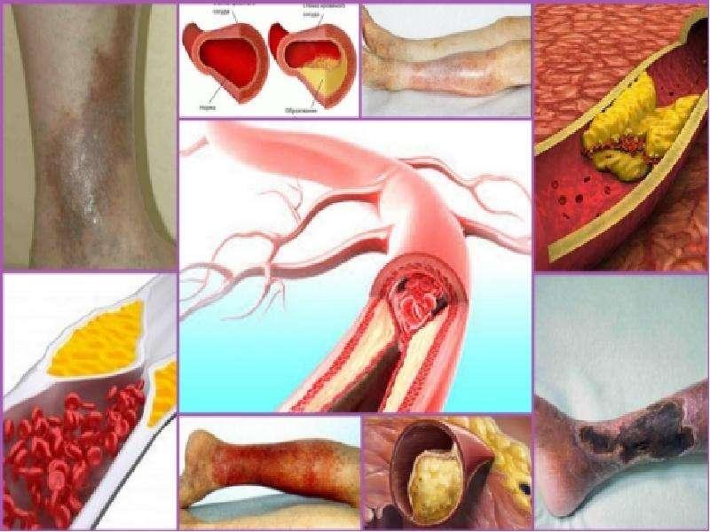 Облитерирующий атеросклероз брюшной аорты и артерий нижних конечностей, слайд 10