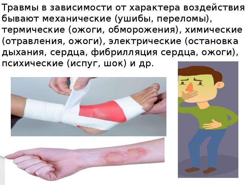 Травмы в зависимости от характера воздействия бывают механические (ушибы, переломы), термические (ож