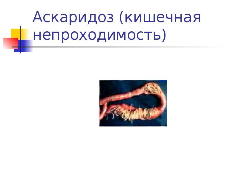 Аскаридоз (кишечная непроходимость)