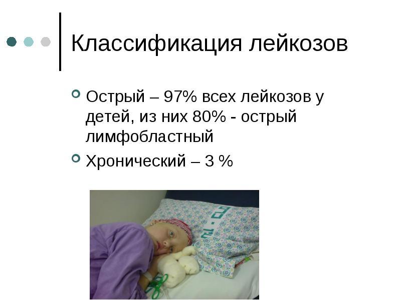 Классификация лейкозов Острый – 97% всех лейкозов у детей, из них 80% - острый лимфобластный Хрониче