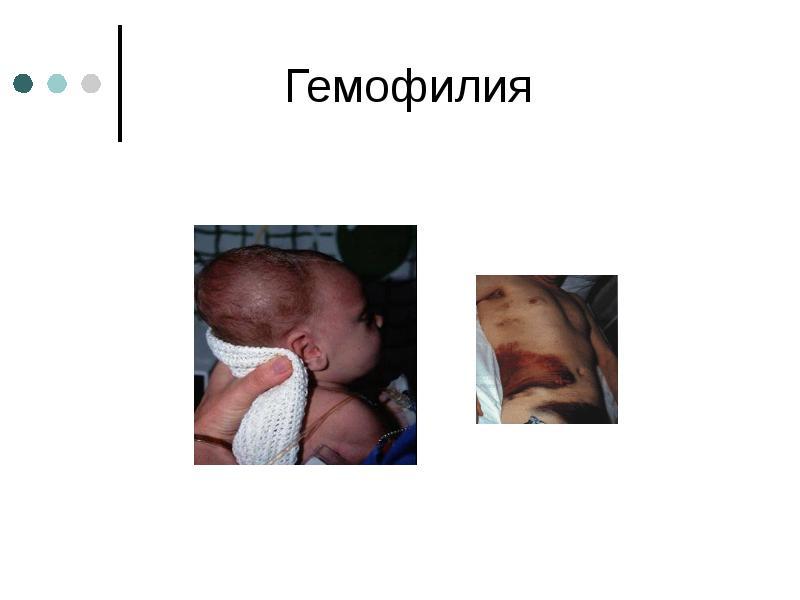 Гемофилия