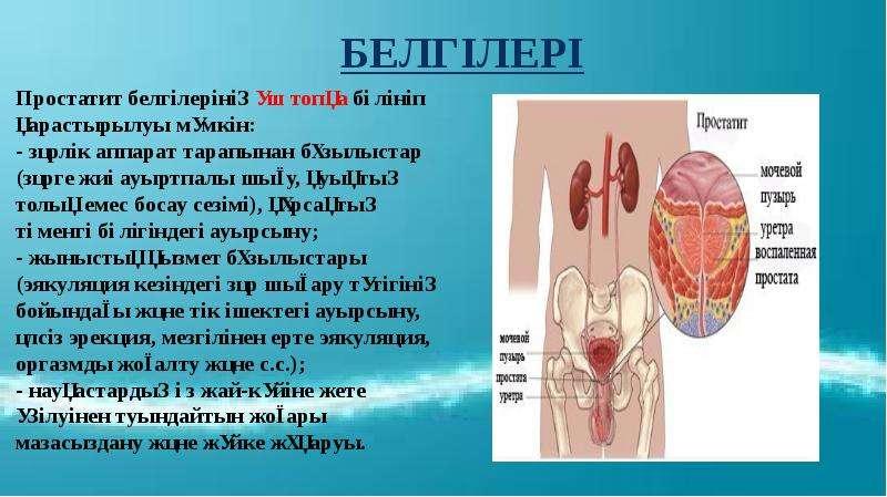 Простатит оорусунун белгилери как вылечить простатит мумием