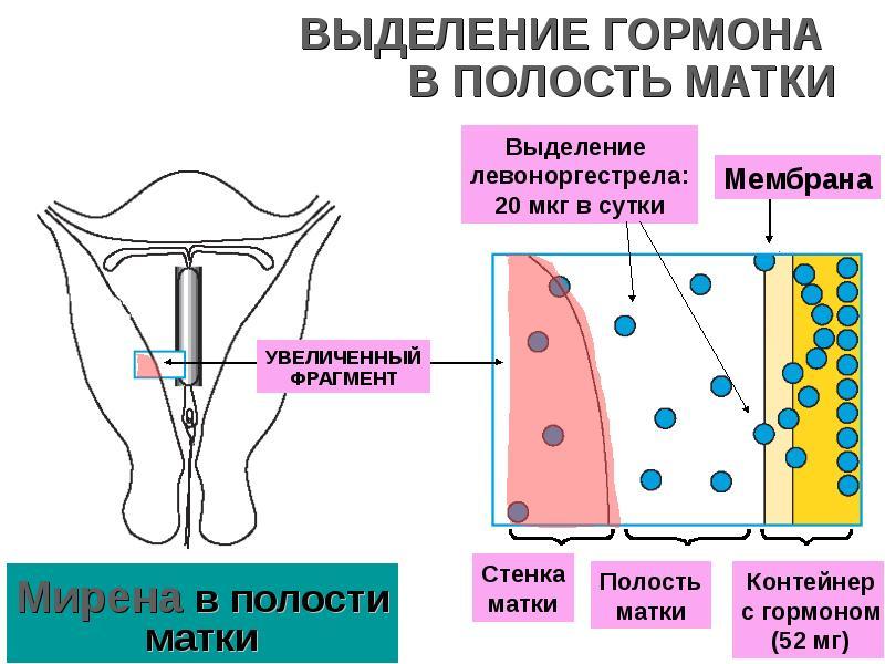 Физиология послеродового периода. Лактация. Грудное вскармливание. Контрацепция, слайд 56