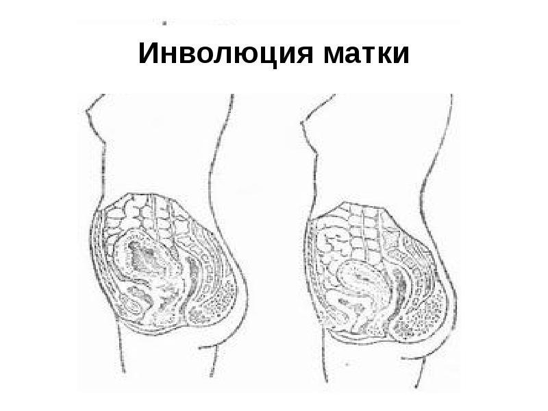 Инволюция матки