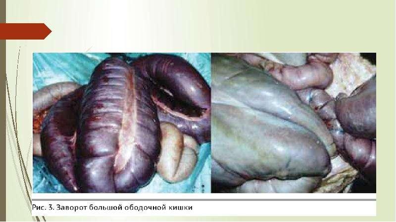 Заворот толстого отдела кишечника у лошади, слайд 4