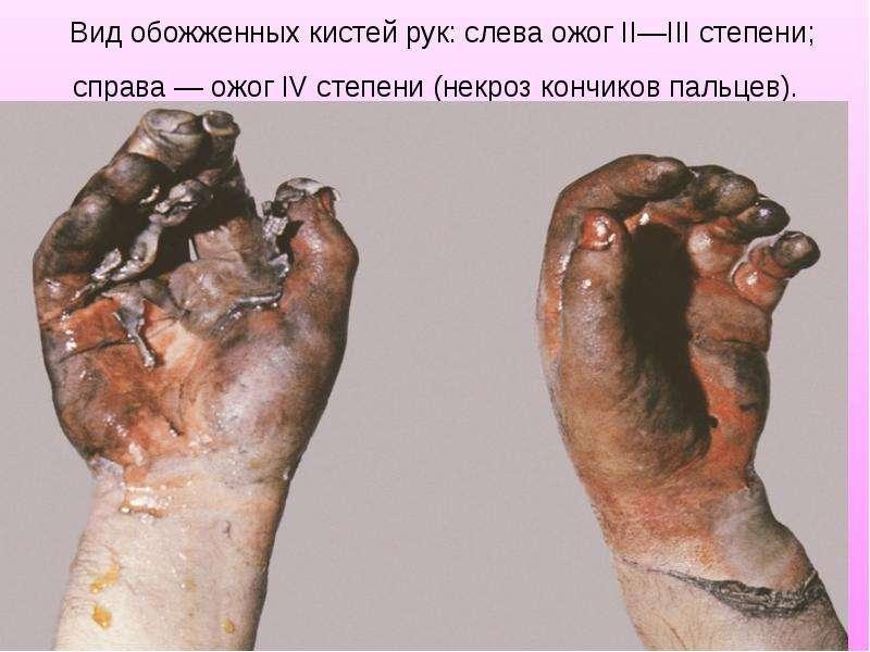 Вид обожженных кистей рук: слева ожог II—III степени; справа — ожог IV степени (некроз кончиков паль