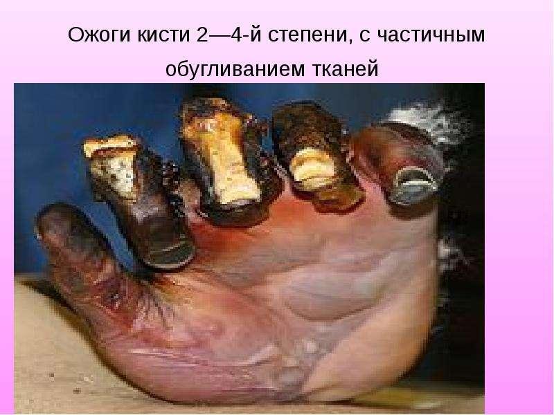 Ожоги кисти 2—4-й степени, с частичным обугливанием тканей