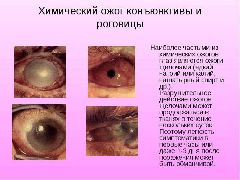 Химический ожог конъюнктивы и роговицы Наиболее частыми из химических ожогов глаз являются ожоги щел