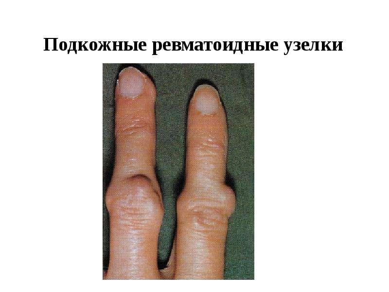 Подкожные ревматоидные узелки