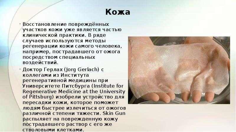 Восстановление повреждённых участков кожи уже является частью клинической практики. В ряде случаев и
