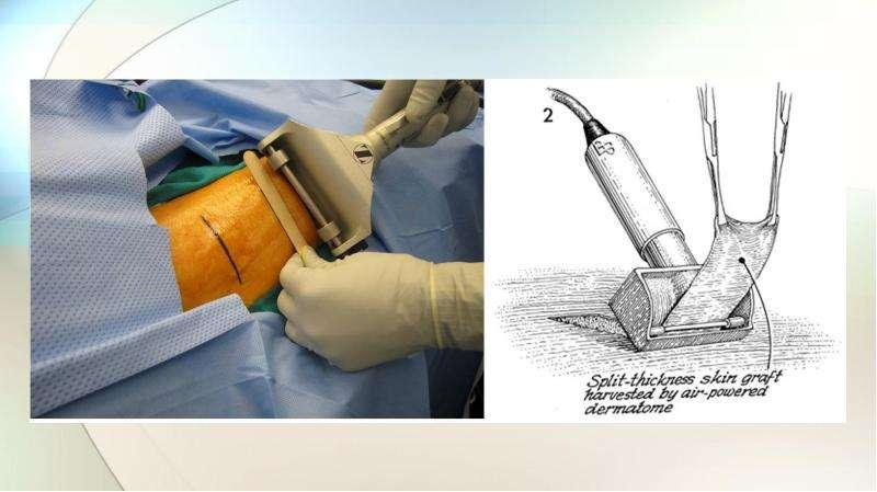 Тканевая инженерия. Биоинженерные органы, слайд 15