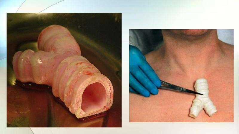 Тканевая инженерия. Биоинженерные органы, слайд 25