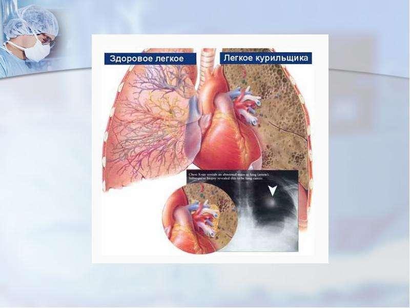 Факторы, негативно влияющие на дыхательную систему, слайд 13