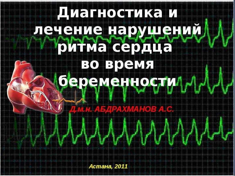 Презентация Нарушения ритма сердца во время беременности