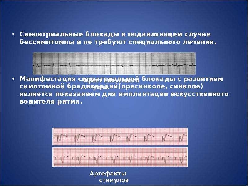 Синоатриальные блокады в подавляющем случае бессимптомны и не требуют специального лечения. Синоатри