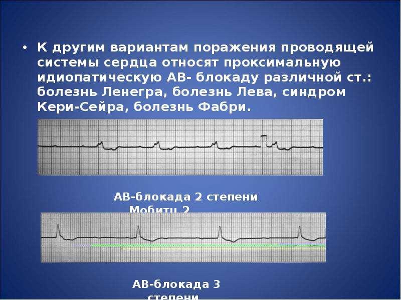 К другим вариантам поражения проводящей системы сердца относят проксимальную идиопатическую АВ- блок