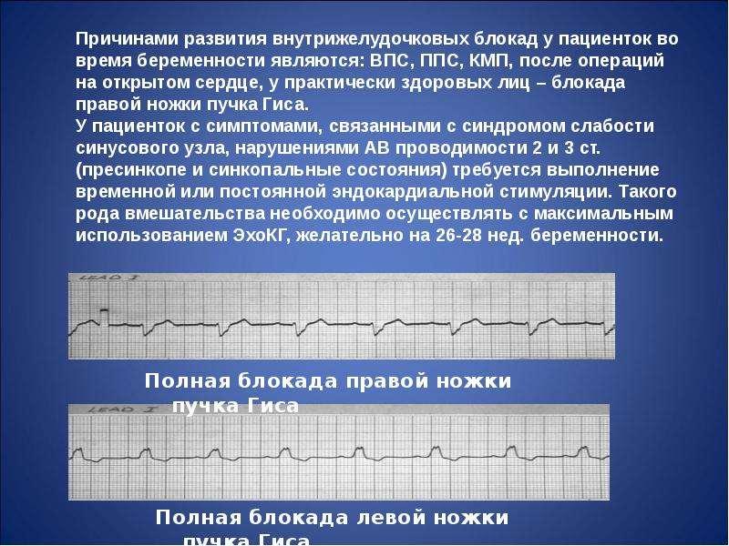 Нарушения ритма сердца во время беременности, слайд 114