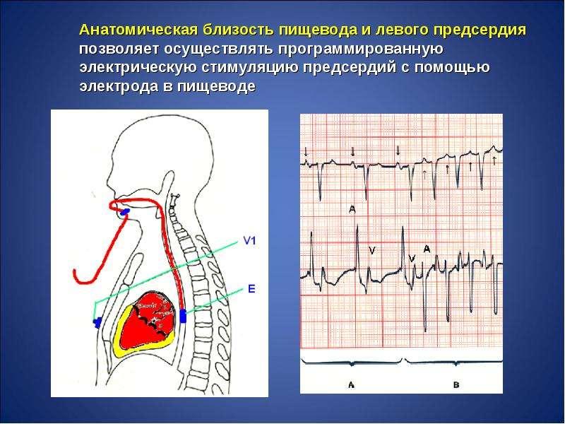 Нарушения ритма сердца во время беременности, слайд 29