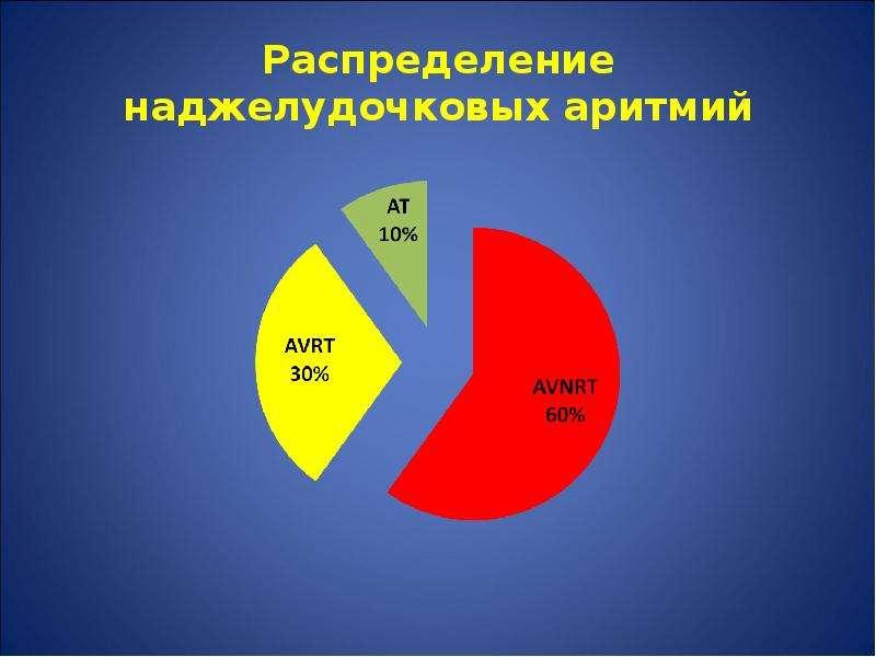 Распределение наджелудочковых аритмий
