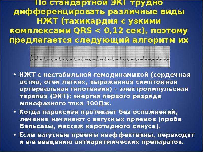 По стандартной ЭКГ трудно дифференцировать различные виды НЖТ (тахикардия с узкими комплексами QRS &