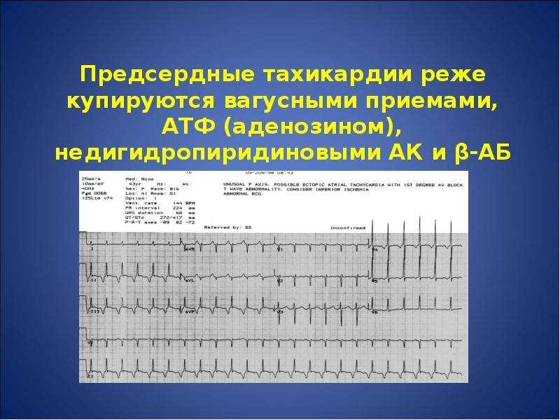 Предсердные тахикардии реже купируются вагусными приемами, АТФ (аденозином), недигидропиридиновыми А