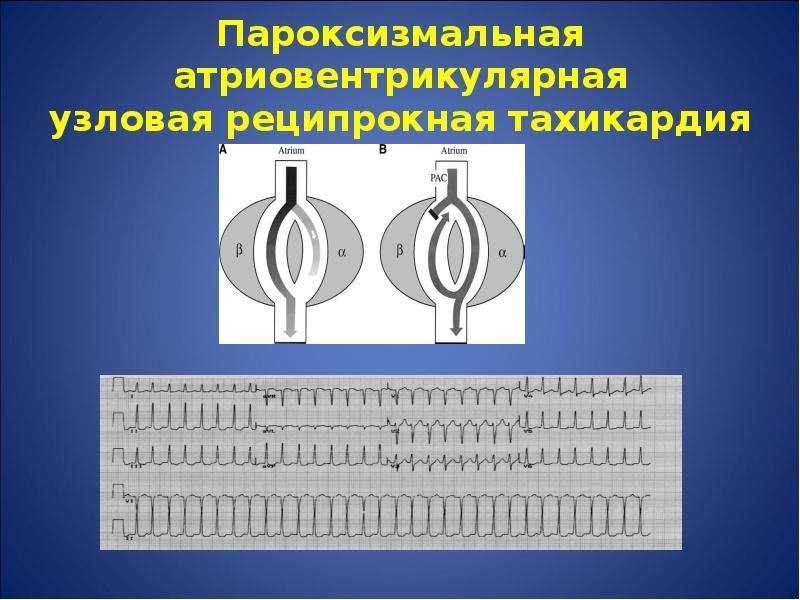 Пароксизмальная атриовентрикулярная узловая реципрокная тахикардия