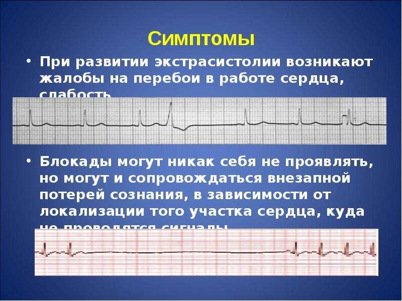 Симптомы При развитии экстрасистолии возникают жалобы на перебои в работе сердца, слабость Блокады м
