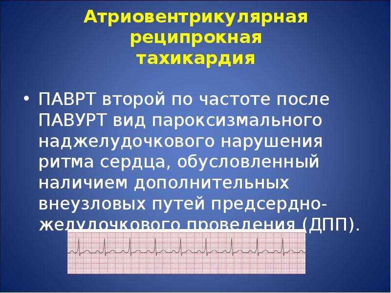 Атриовентрикулярная реципрокная тахикардия ПАВРТ второй по частоте после ПАВУРТ вид пароксизмального