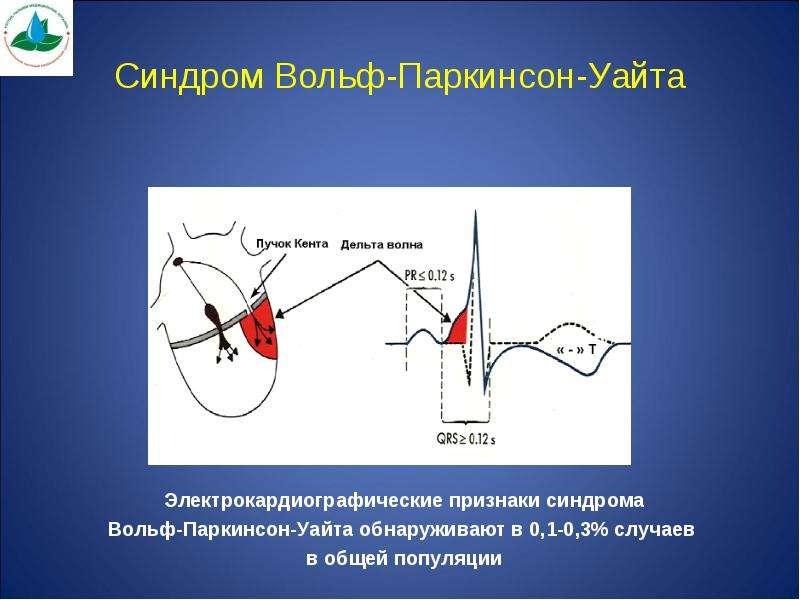 Синдром Вольф-Паркинсон-Уайта