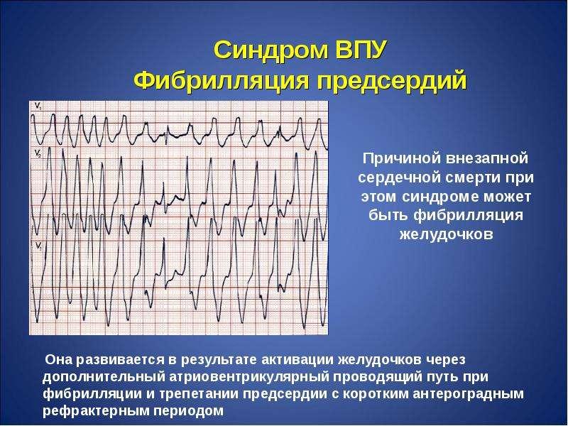 Причиной внезапной сердечной смерти при этом синдроме может быть фибрилляция желудочков