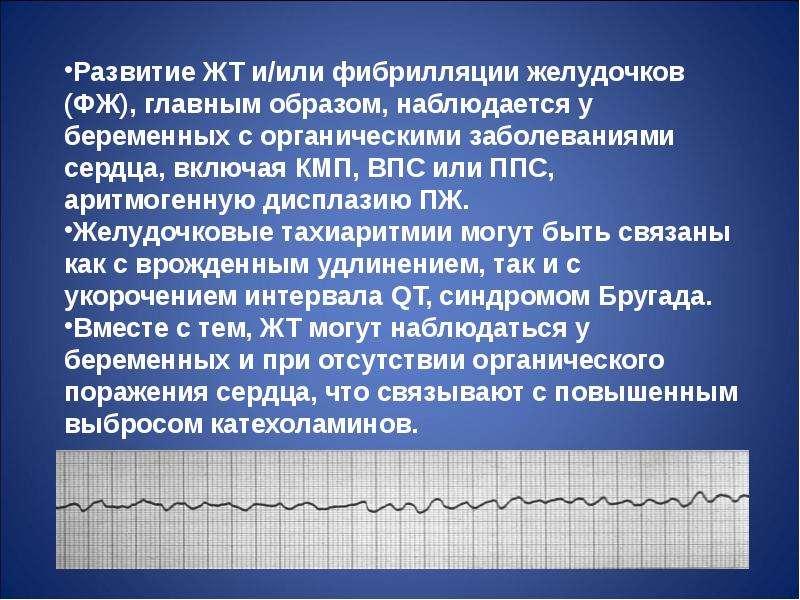Нарушения ритма сердца во время беременности, слайд 100