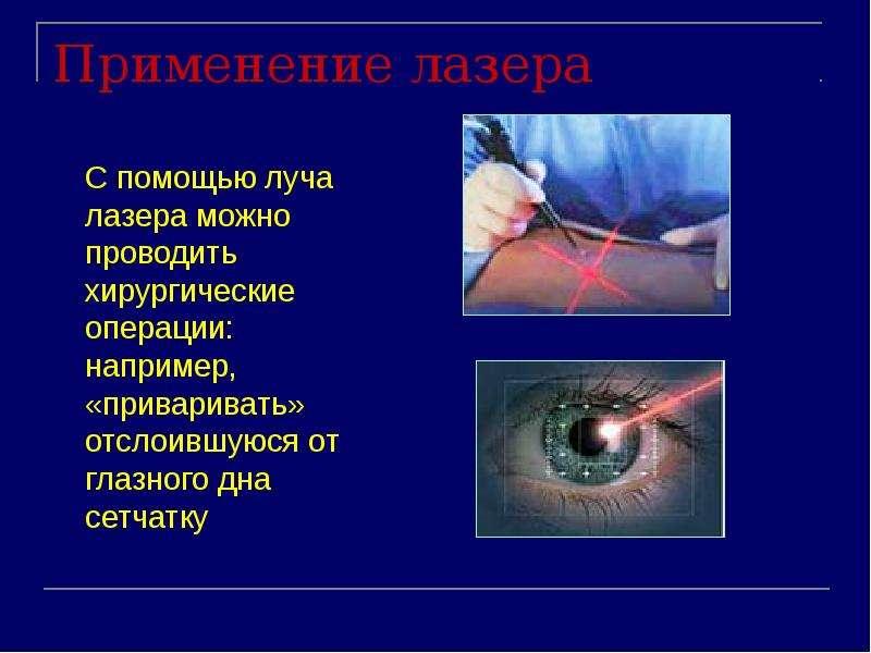 Применение лазера С помощью луча лазера можно проводить хирургические операции: например, «приварива