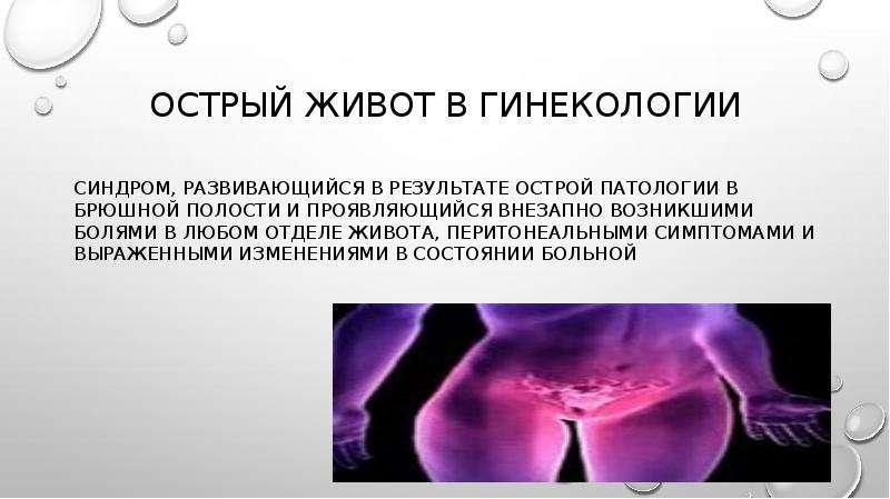 Острый живот в гинекологии синдром, развивающийся в результате острой патологии в брюшной полости и